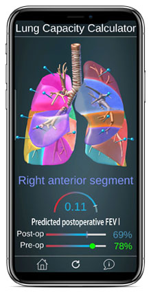 Surgical Anatomy of the Lung App | Carlos and Davis Center for ...
